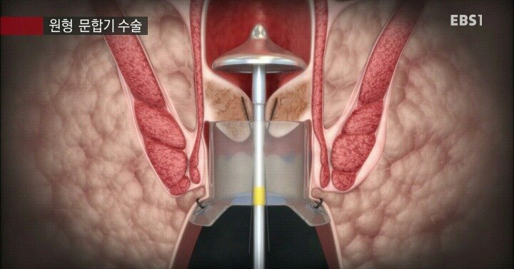 5.jpg 15분만에 끝나는 치핵수술