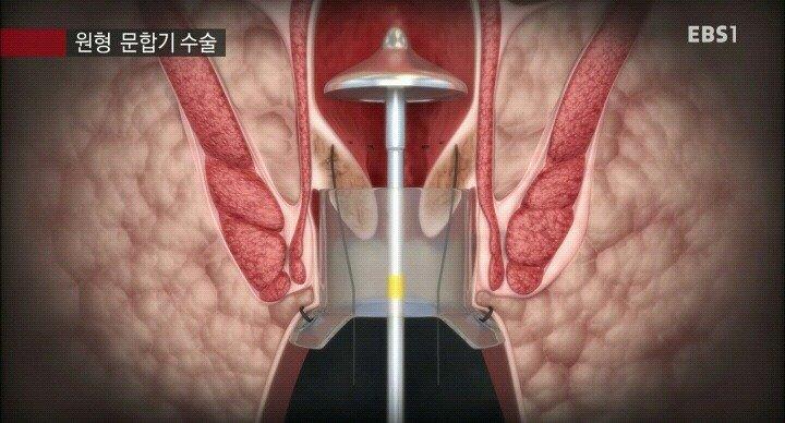 4.jpg 15분만에 끝나는 치핵수술