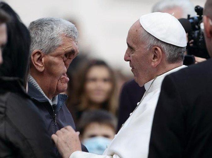 20131120-zaf-i15-001-jpg.jpg 얼굴에 장애 입은 이들을 축복하는 프란치스코 교황