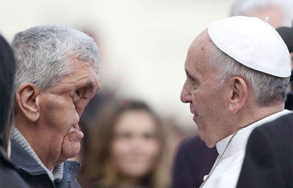 bc528d0a8cae8a5_84def5af70e137656b1e616ac7d28320.jpg 얼굴에 장애 입은 이들을 축복하는 프란치스코 교황