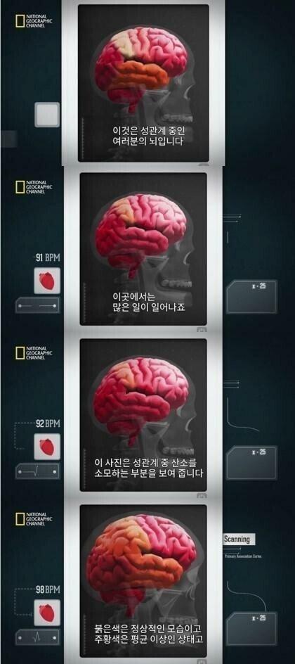 q.jpg 사정후의 뇌