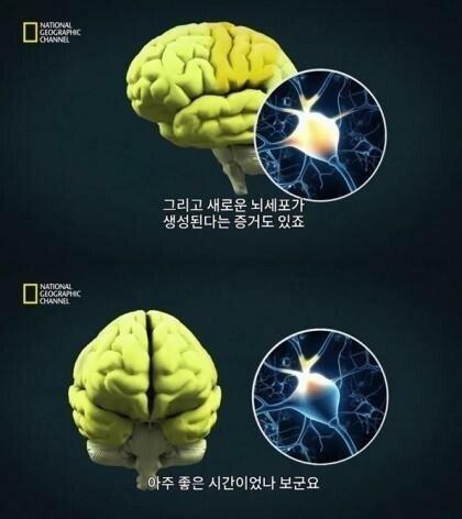 e.jpg 사정후의 뇌