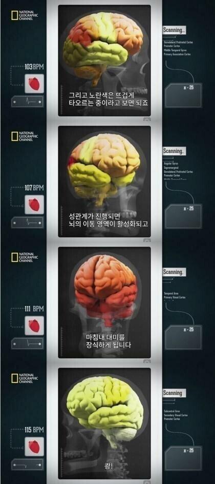 w.jpg 사정후의 뇌