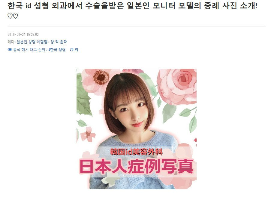 000.jpg 한국 성형외과의 일본인 모니터 모델