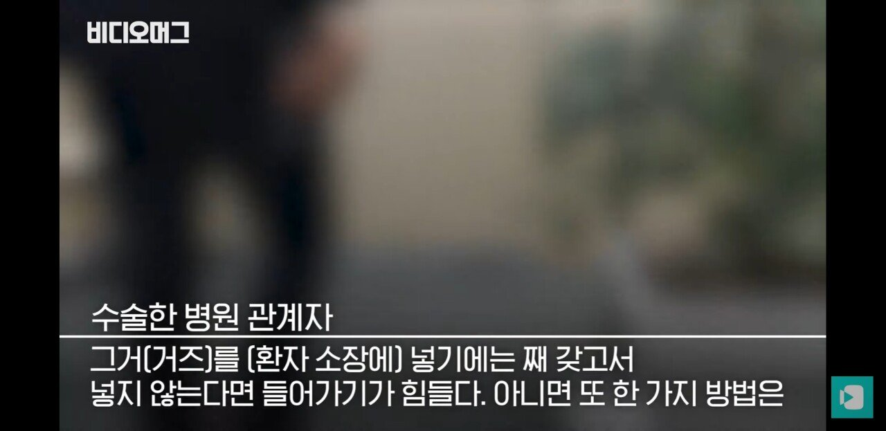 Screenshot_20190814-212329_YouTube.jpg 맹장 수술 후 뱃속에서 나온것