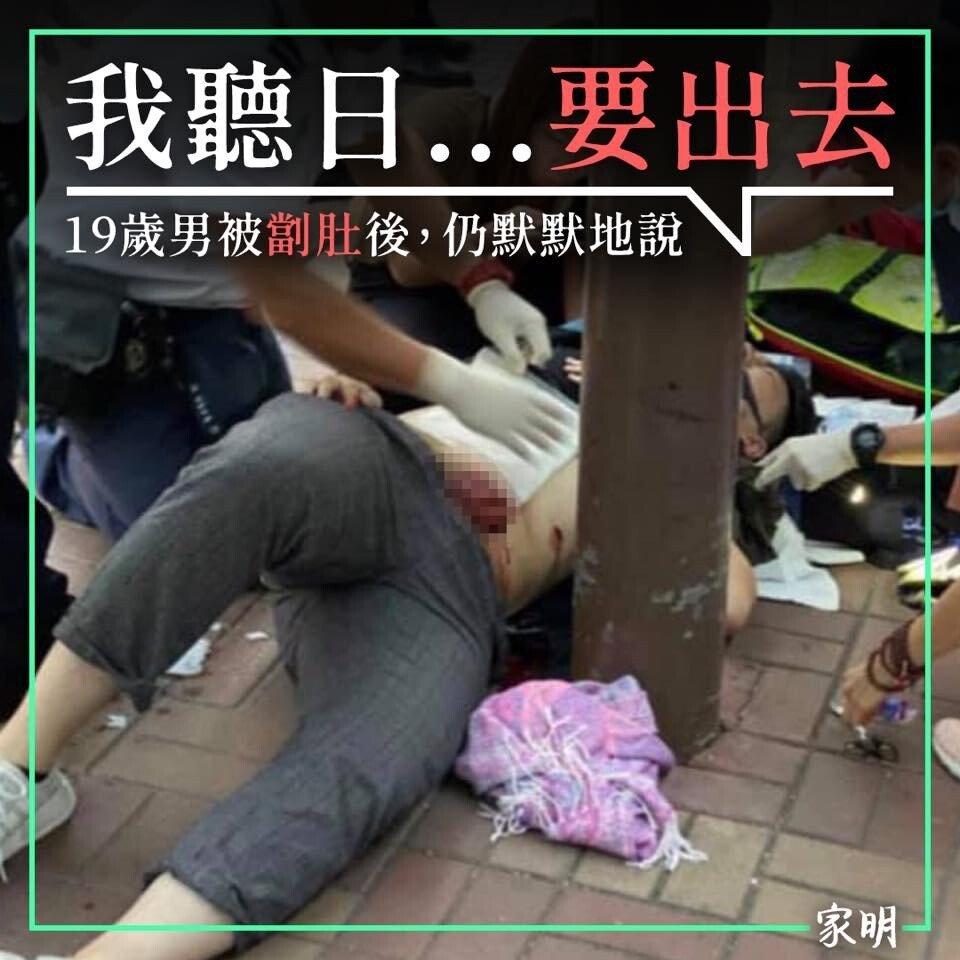 ECFBA749-1A40-4A43-A926-7CE7DC49D847.jpeg 혐오)19살의 홍콩시위자 칼에찔려 내장튀어나와..
