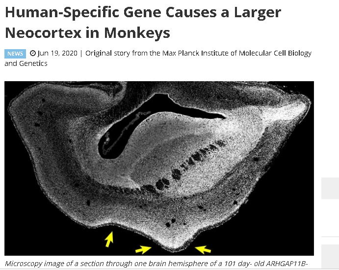 3012c404e60453cae897952457dcbe77.png 사람 유전자를 원숭이 수정란에 끼워 넣은 결과