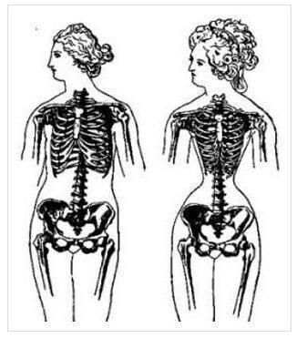 9c1cb996c0a69a75bb2340f0a5d8b3be2a0b1bc9.jpeg 코르셋 사용으로 변화한 중세 여성의 갈비뼈