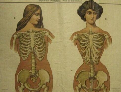 bc103174231b93a214052413f30a3b6d4dac5c82.jpeg 코르셋 사용으로 변화한 중세 여성의 갈비뼈