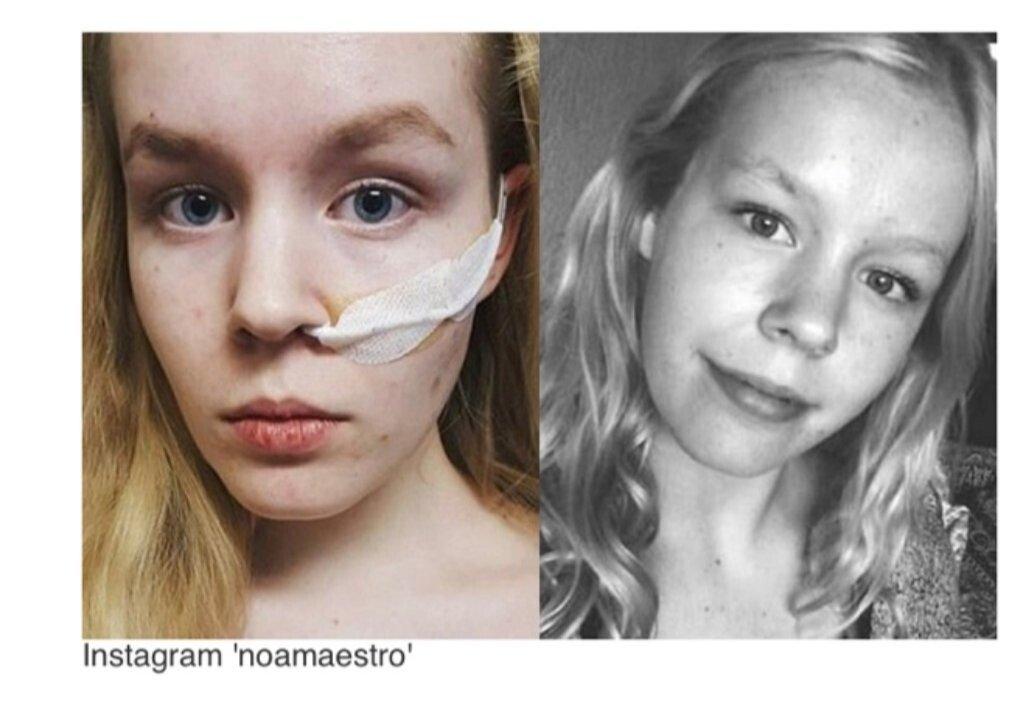 20210922_071450.jpg 스스로 안락사를 선택한 17살 네덜란드 소녀